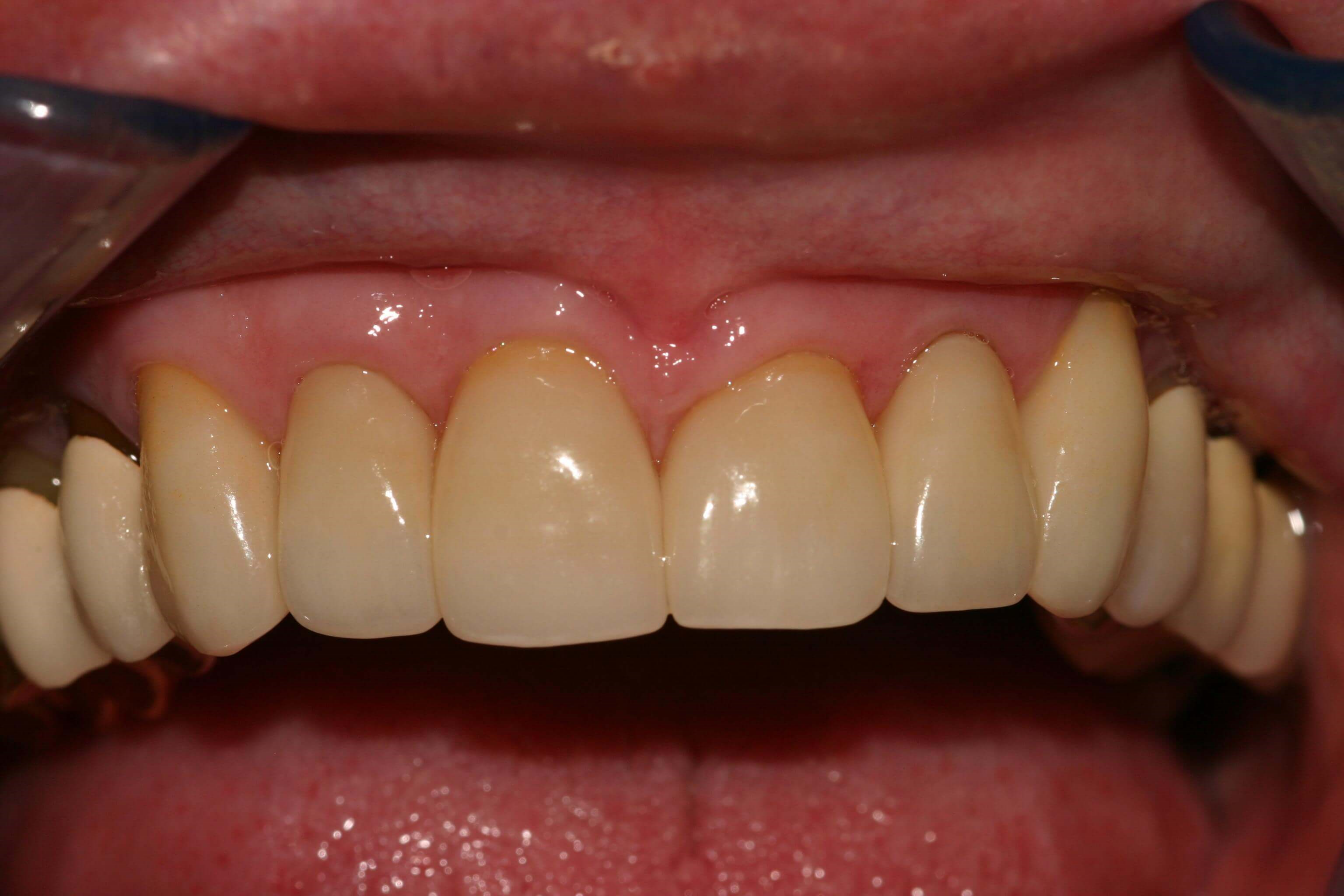 Worn Teeth get a New Smile After
