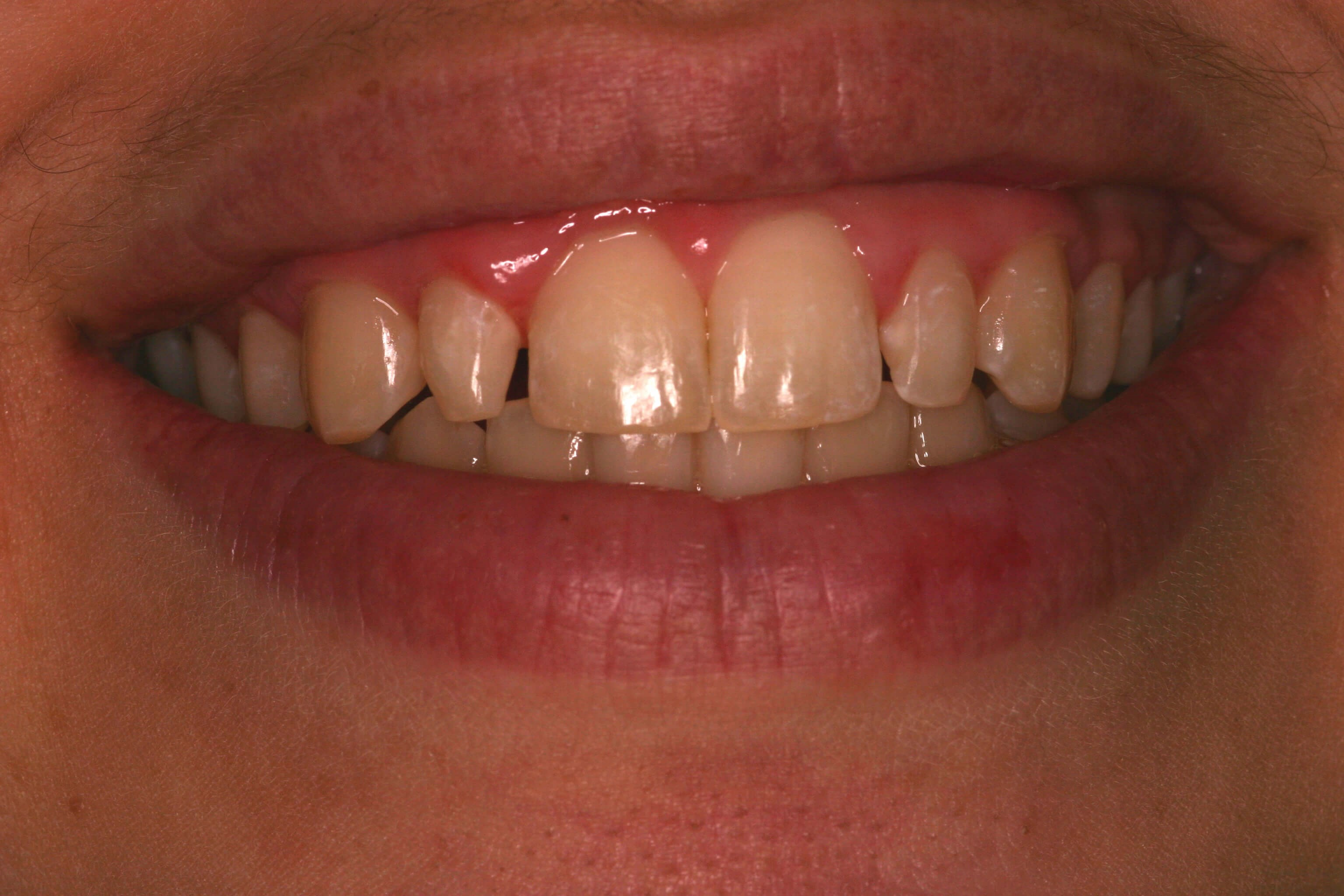 Dental Bonding Smile Makeover Before Bonding