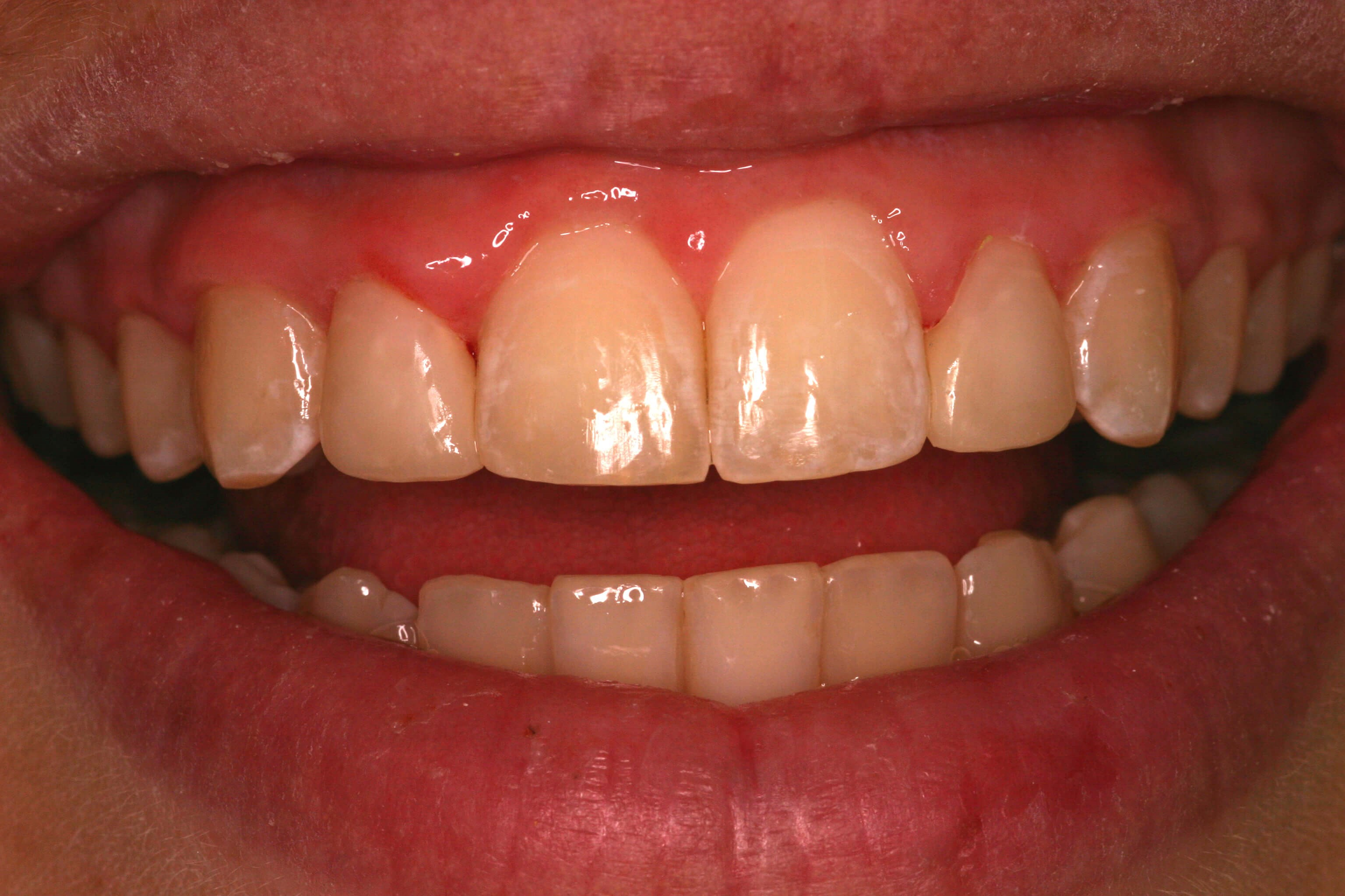 Dental Bonding Smile Makeover After Bonding