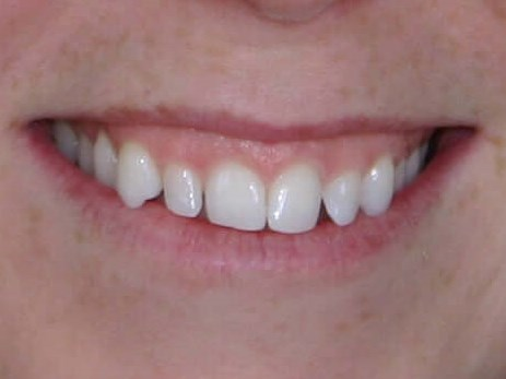Chairside Smile Makeover Before Bonding