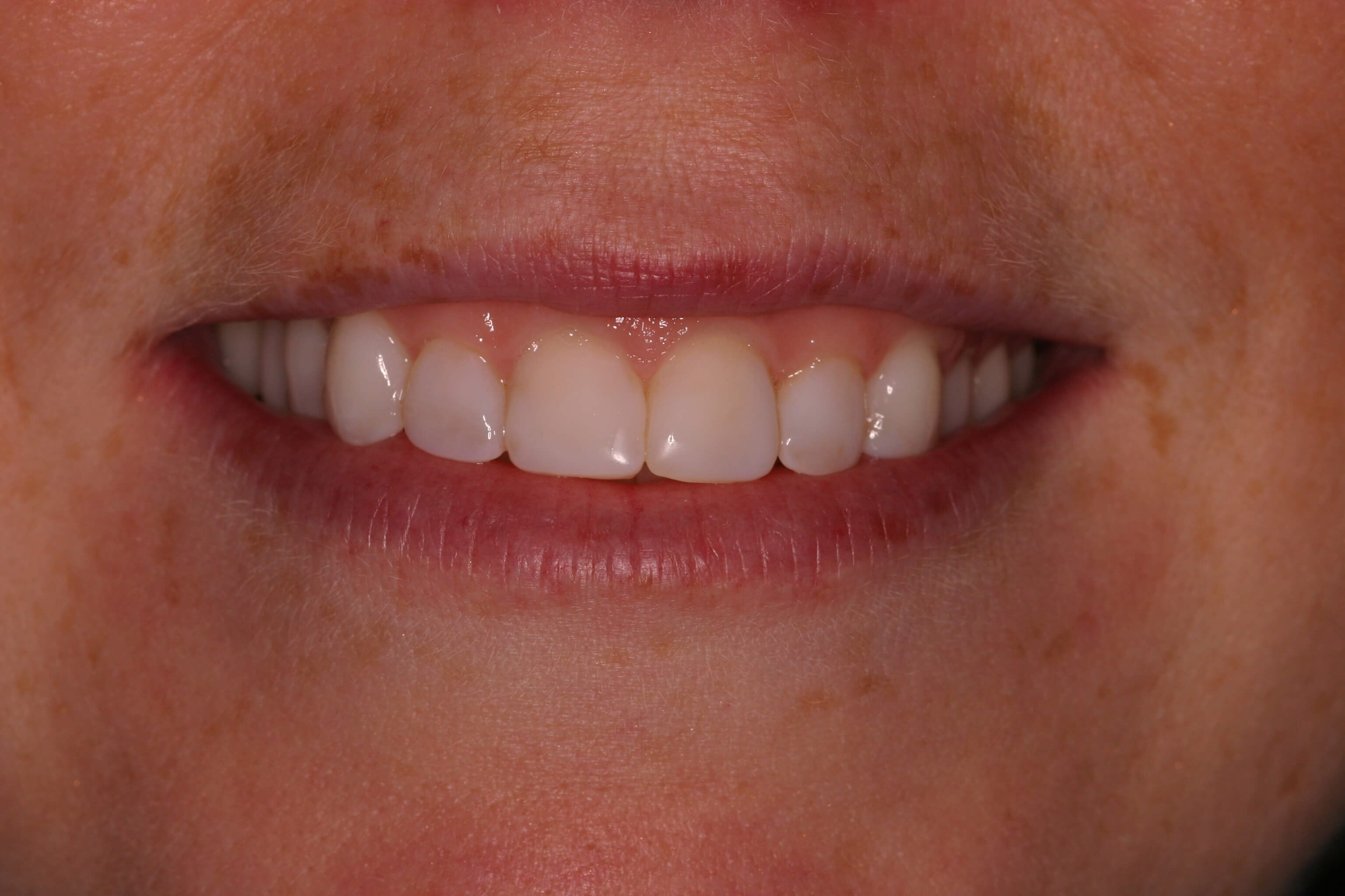 Chairside Smile Makeover After Bonding