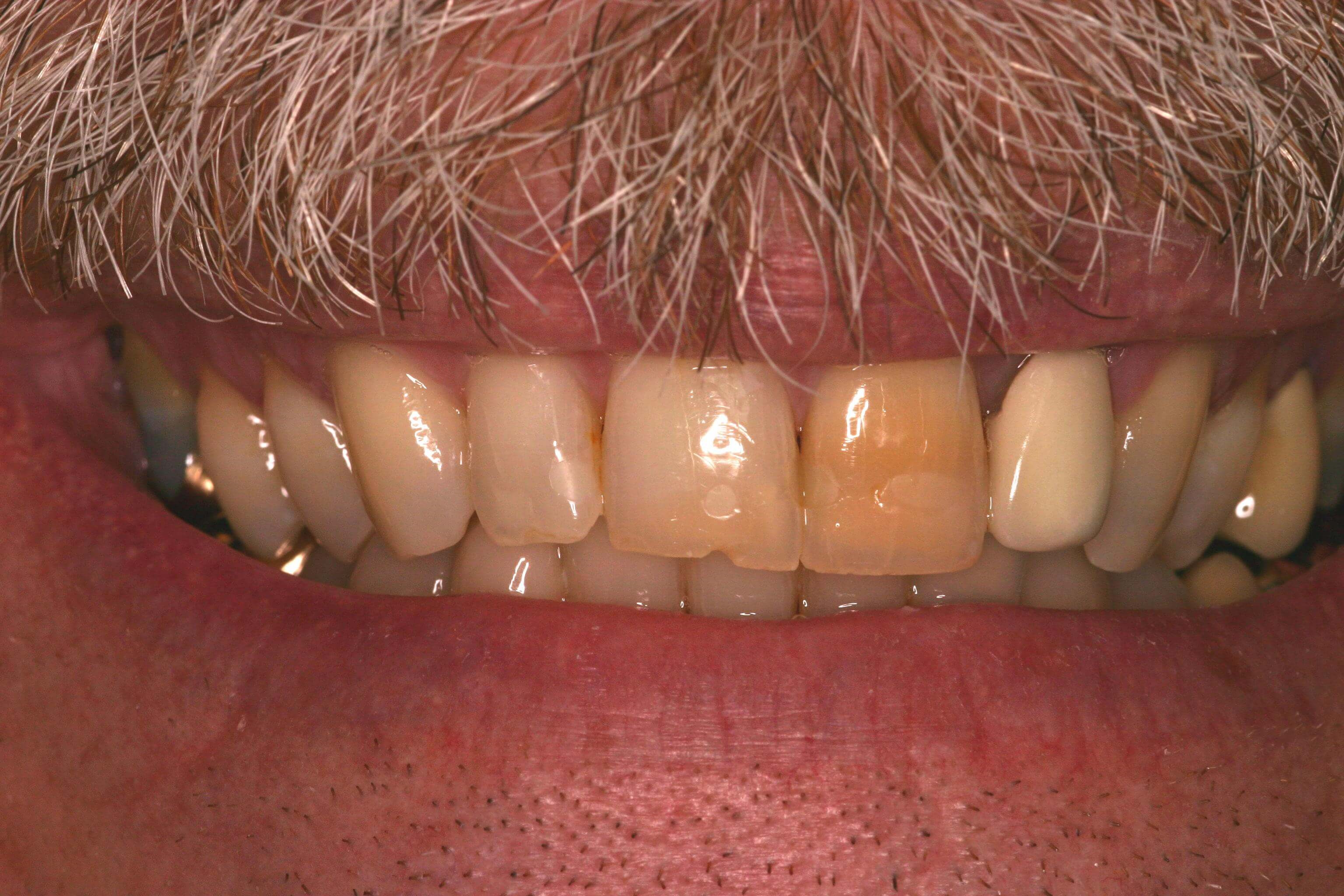 CEREC One Day Crowns Before