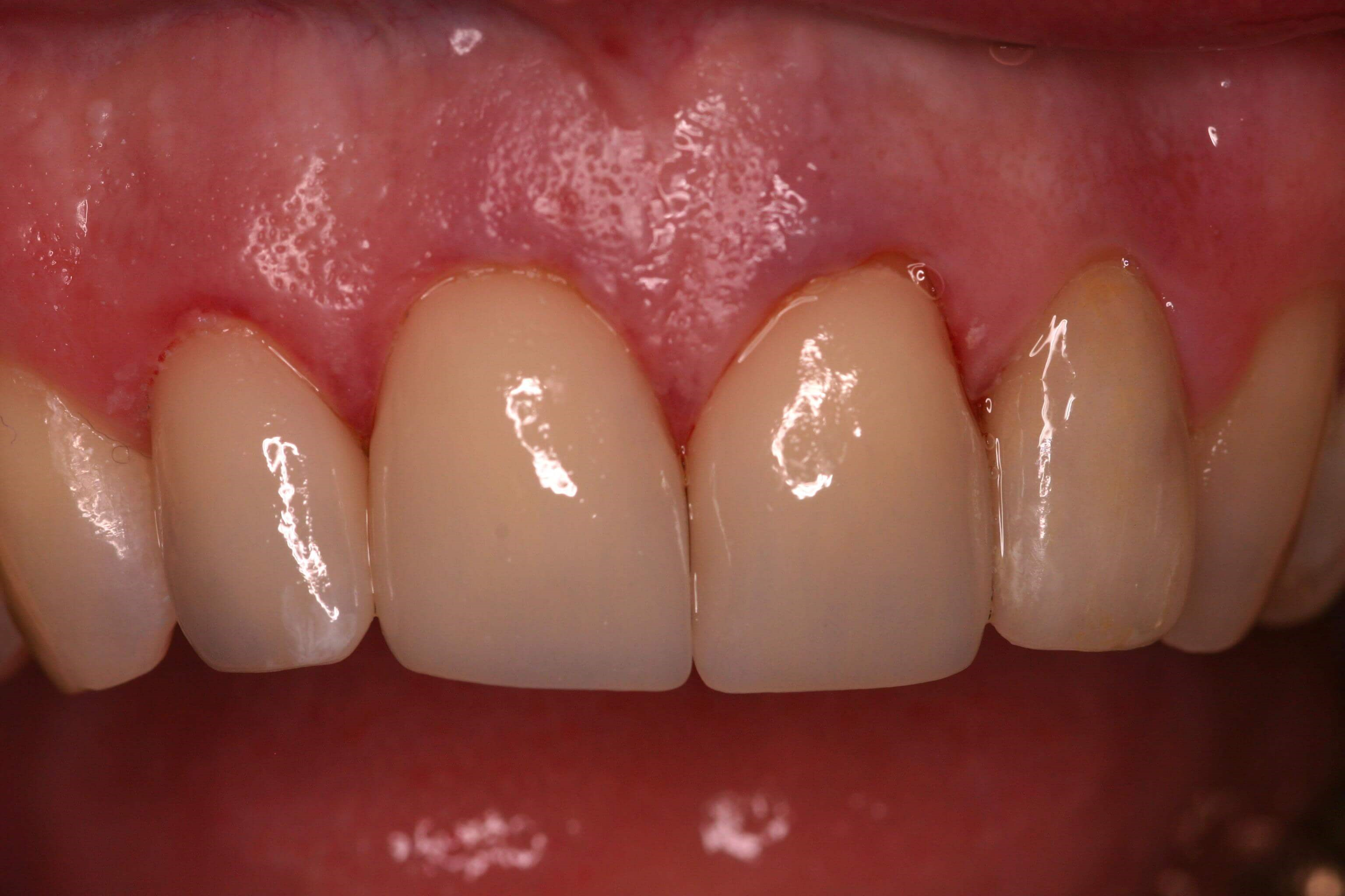 CEREC One Day Crowns After