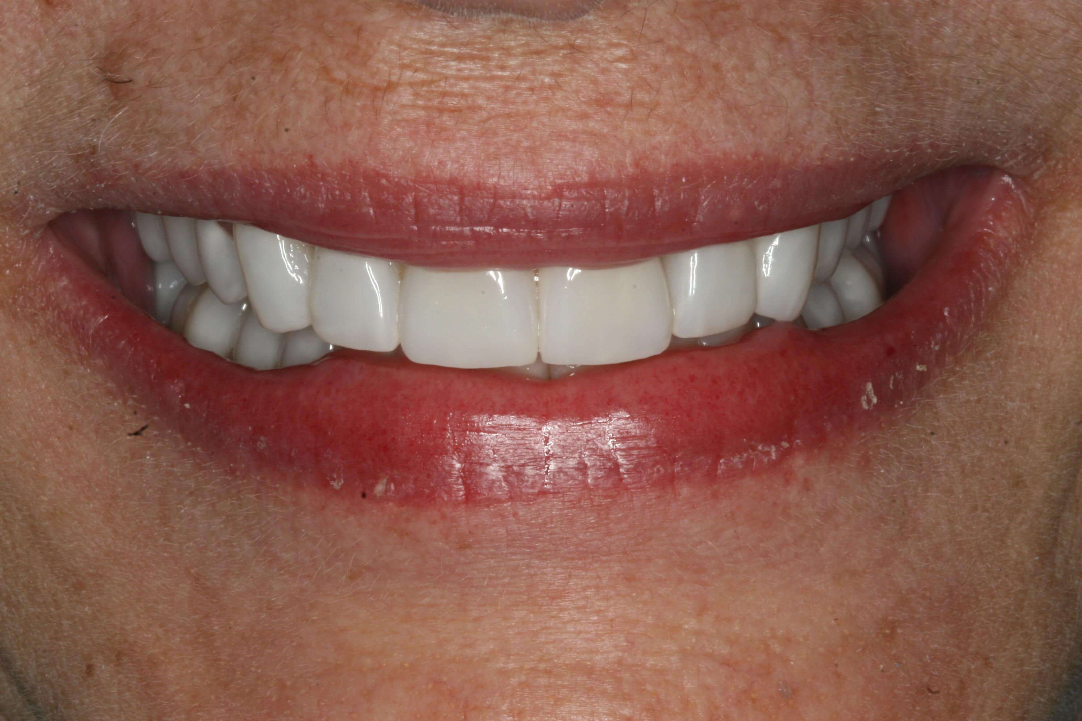 Before view of smile and teeth After