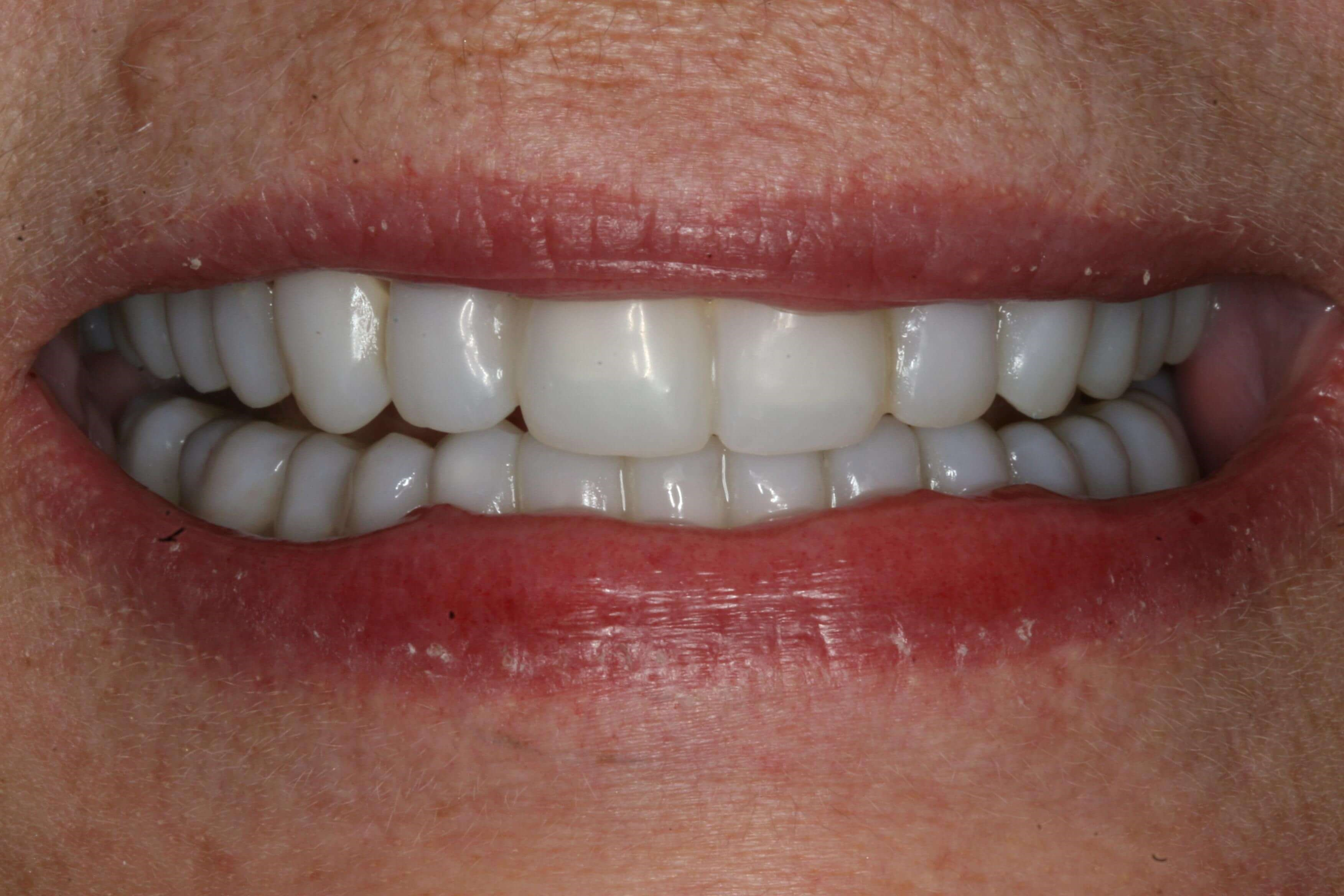 Provisional Restorations Provisional Smile