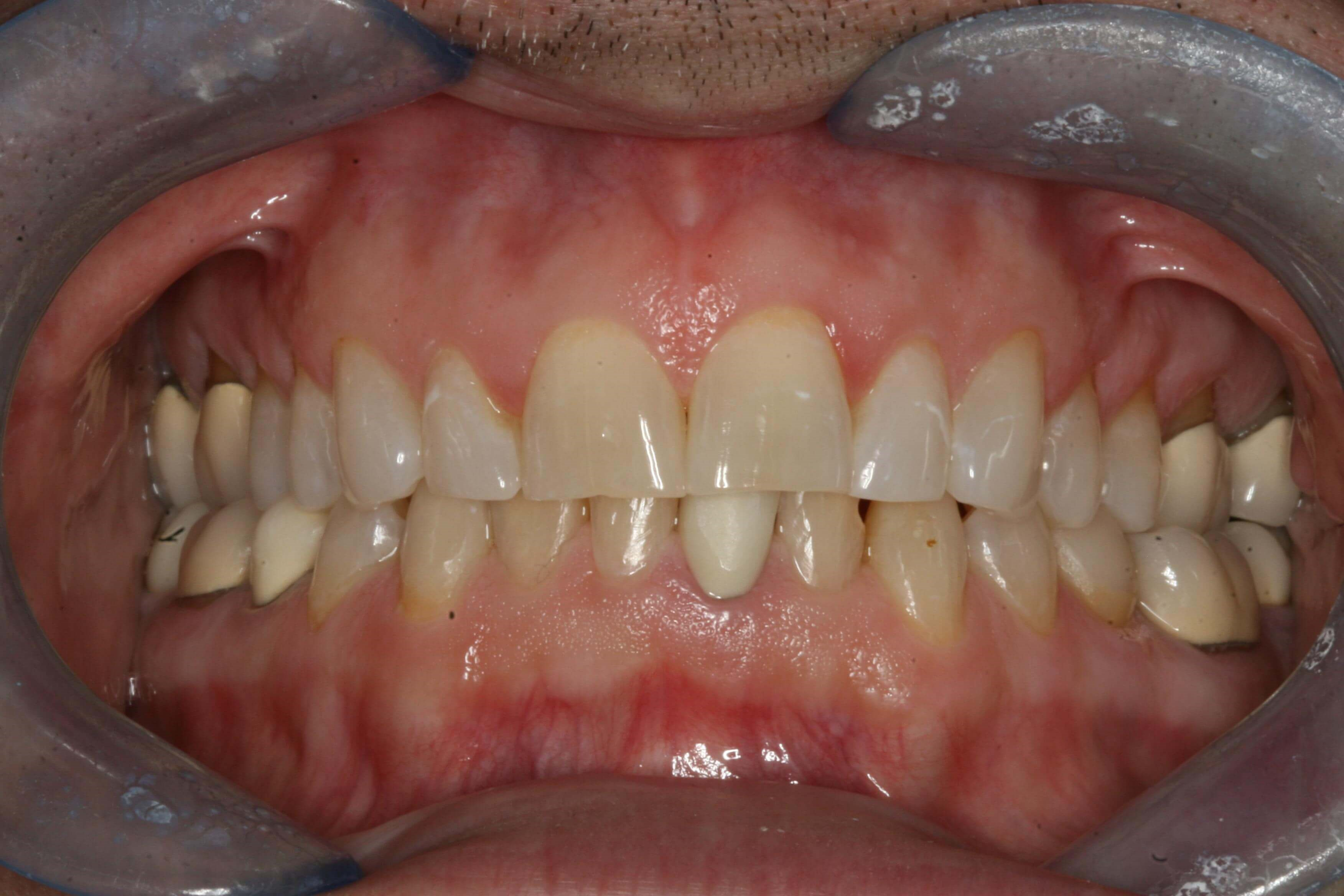 Worn Dentition Needs Makeover Before