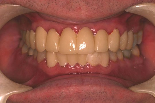Temporary Provisional Teeth Smile With Temporaries