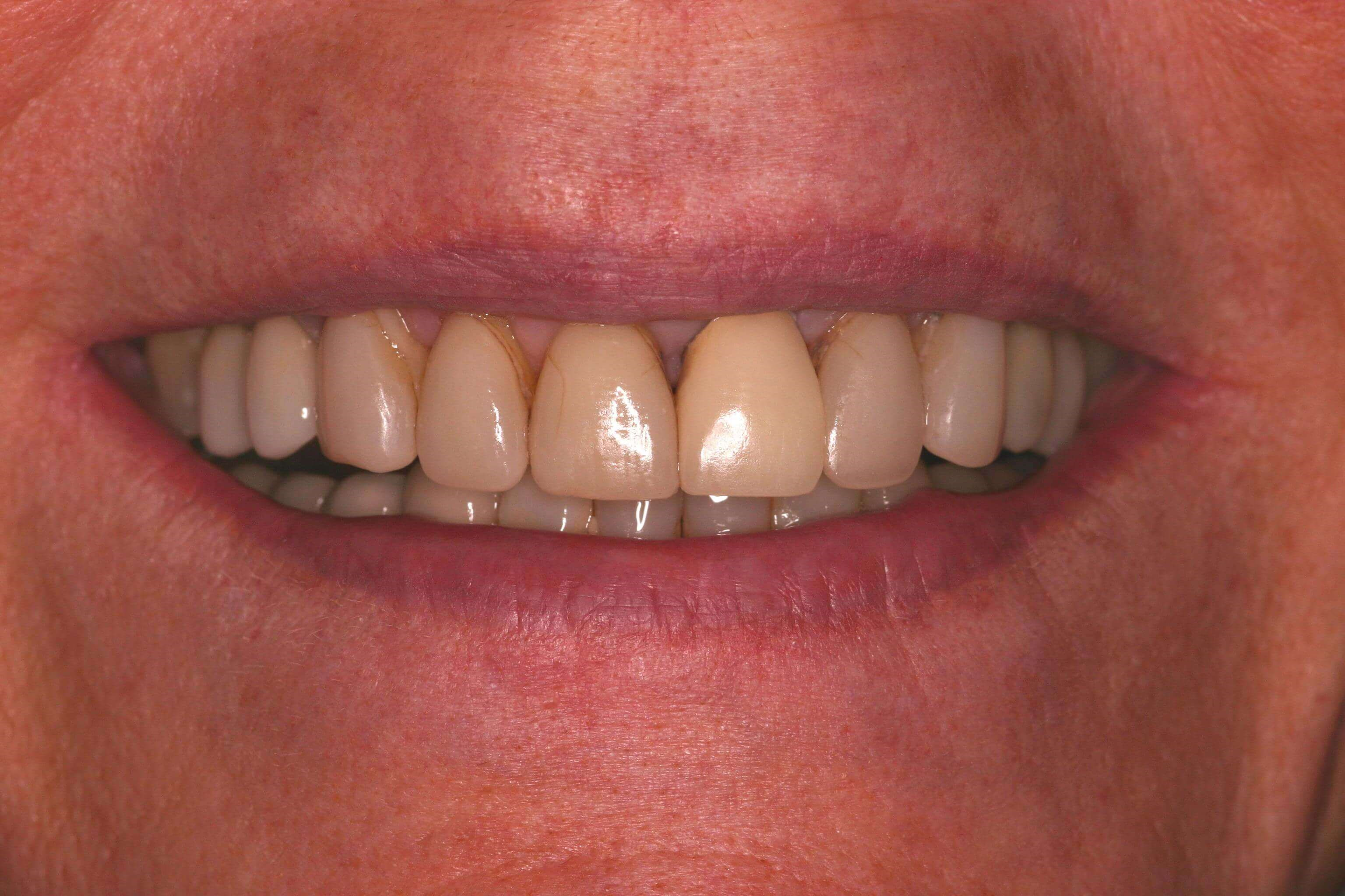 Older Crowns Need Replacement Before