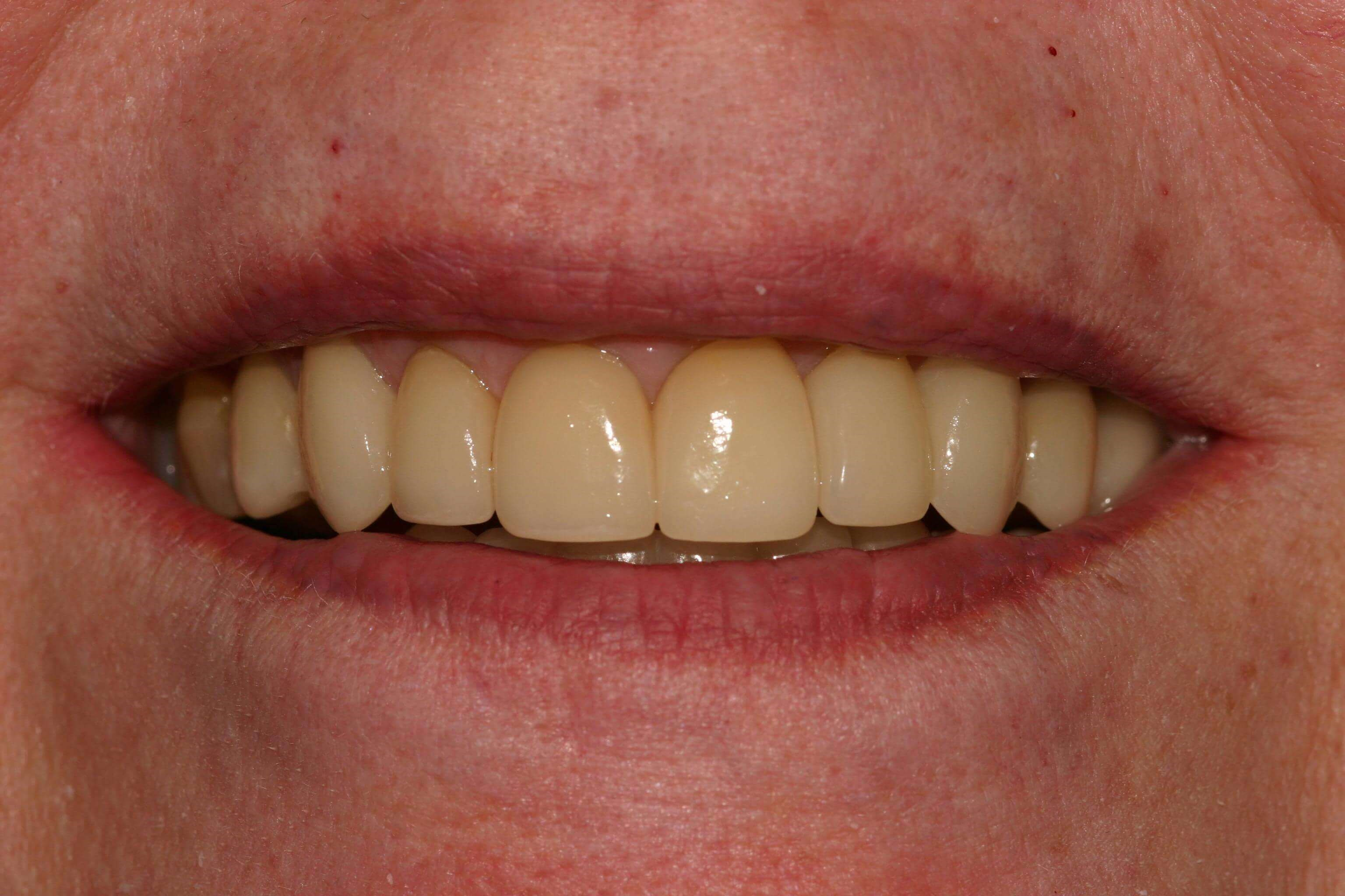 Older Crowns Need Replacement After
