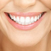 Home/Office Teeth Whitening